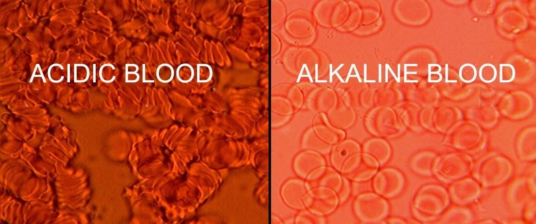 Η Αλκαλικότητα του αίματος, ως παράγοντας αντιγήρανσης και πρόληψης του καρκίνου*