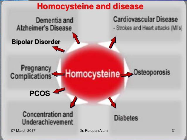 Τα υψηλά επίπεδα της ομοκυστεΐνης, ισχυρός παράγοντας ρίσκου εμφάνισης άνοιας και της νόσου Αλτσχάϊμερ*