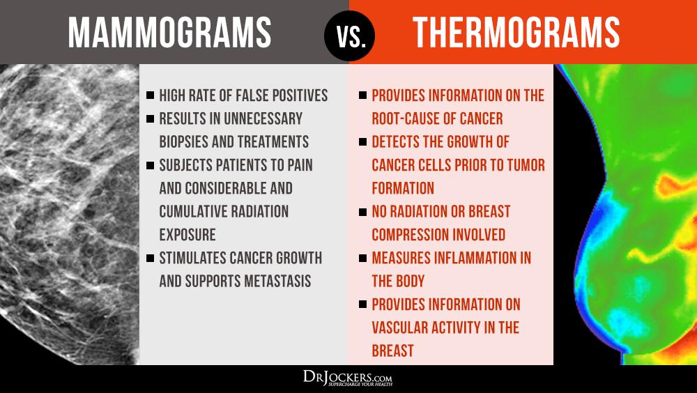 Μαστογραφία (mammogram). Είναι απαραίτητη ή εμπεριέχει κινδύνους και έχει πενιχρά αποτελέσματα; *