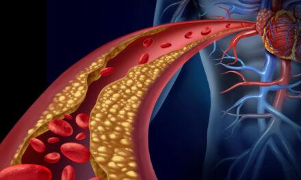 Καρδιαγγειακές παθήσεις. Η μεγαλύτερη παγκόσμια επιδημία. Γιατί ; *
